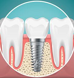 services dental implants