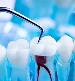 services root canal treatment
